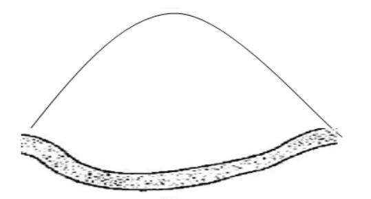Horse shoe pattern