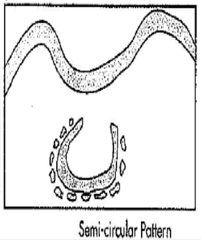 semi circular pattern
